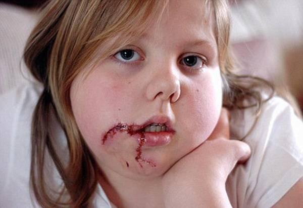 Почему ребенок в 1.5 года кусается